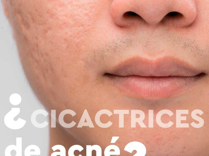 clinicaelements-cicatricesdeacné