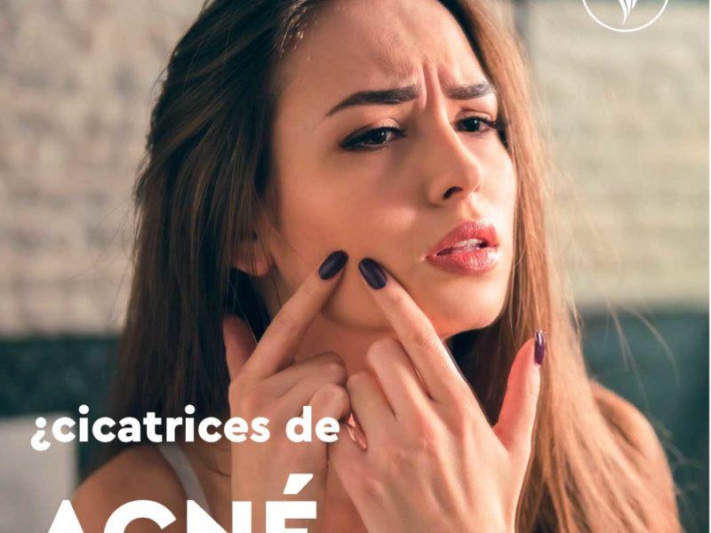 clinicaelements-cicatricesdeacné1